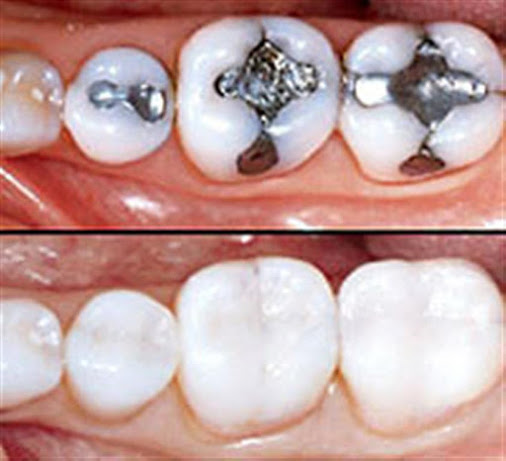 Trám răng thẩm mỹ là gì?