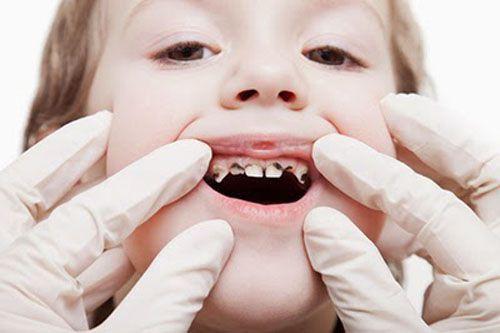 Trẻ bị sún răng sữa mẹ phải làm gì?