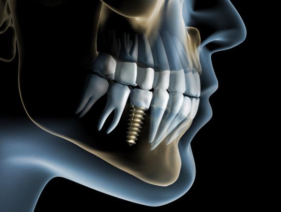 trong-rang-implant-co-nguy-hiem-khong-1