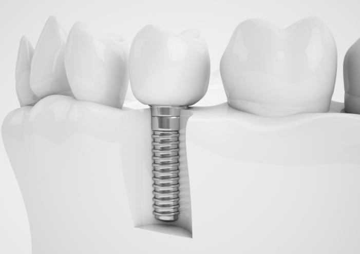 trong-rang-implant-co-nguy-hiem-khong-3