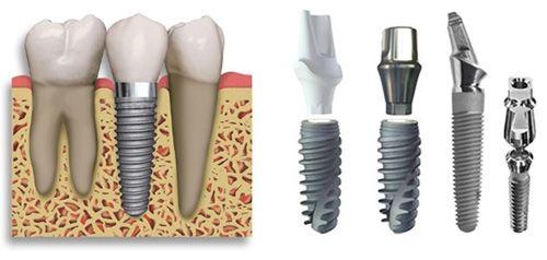 Trồng răng implant ở đâu tốt tại tphcm?