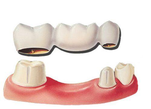 Trồng răng ở đâu tốt tphcm?