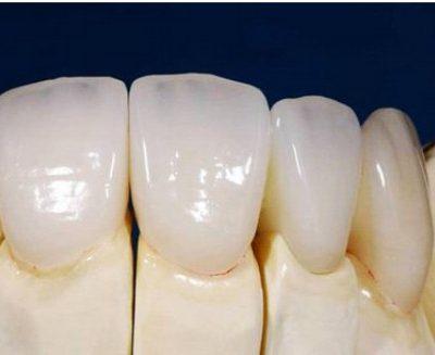 Ưu điểm răng toàn sứ