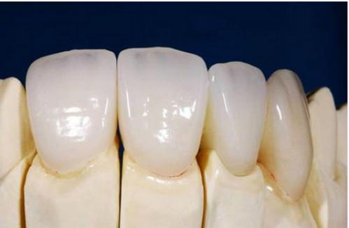 Ưu điểm răng toàn sứ 1
