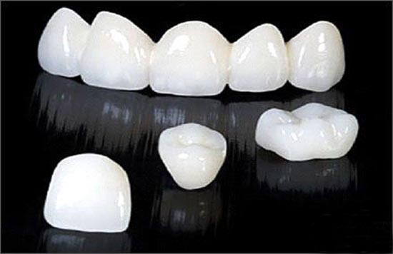 Ưu điểm răng toàn sứ 2
