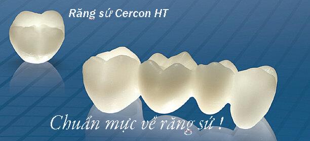 Ưu và nhược điểm của răng sứ Cercon 1