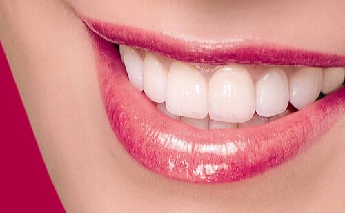 Ưu và nhược điểm của răng sứ Cercon 2