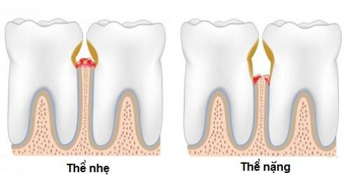 Viêm chân răng có nguy hiểm không? 2