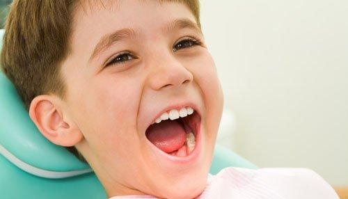 Viêm chân răng ở trẻ em và những điều phụ huynh nên biết 2