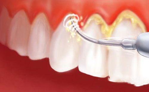 Viêm chân răng và cách điều trị 3
