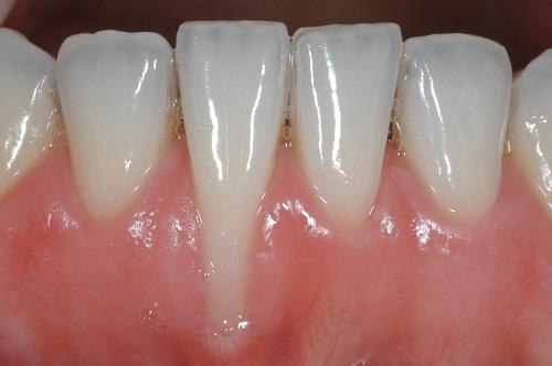 Viêm lợi hở chân răng phải điều trị như thế nào? 1