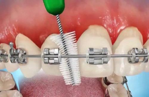 5 điều cần nhớ khi niềng răng chỉnh nha