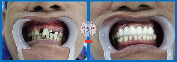 Trồng răng giả ở đâu tốt nhất?