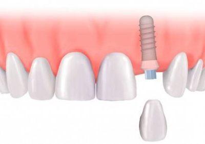 cay-ghep-implant-1