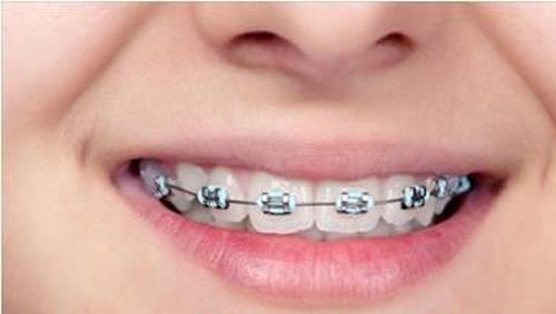 Chi phí niềng răng cửa hết bao nhiêu tiền?