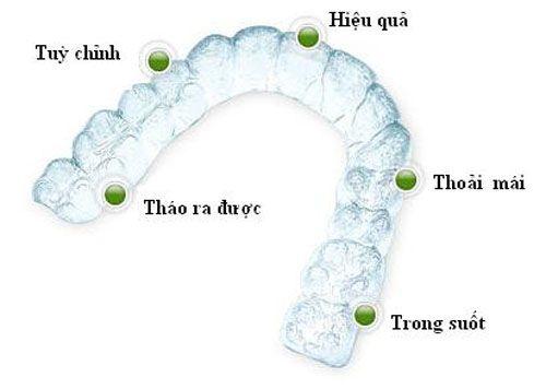 Chi phí niềng răng Invisalign hết bao nhiêu tiền?