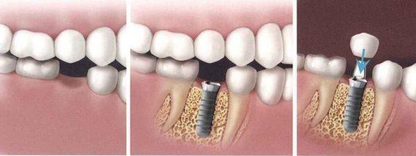 Implant nha khoa thẩm mỹ hoàn mỹ