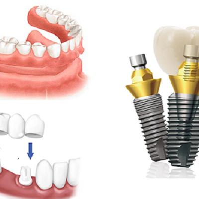 implant-nha-khoa-2