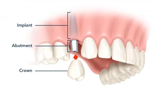 implant-nha-khoa-3