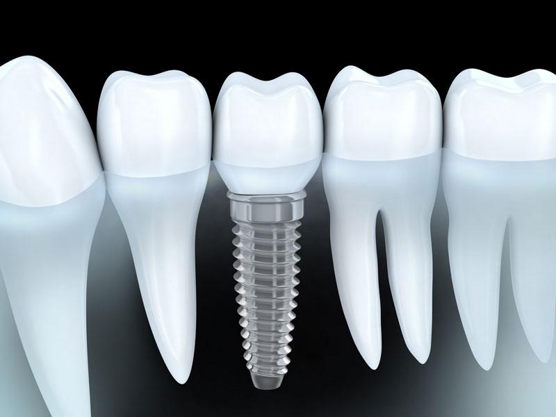 Kỹ thuật trồng implant an toàn