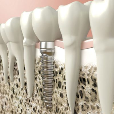 ky-thuat-trong-implant-2