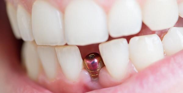 Những lợi ích khi cấy ghép Implant