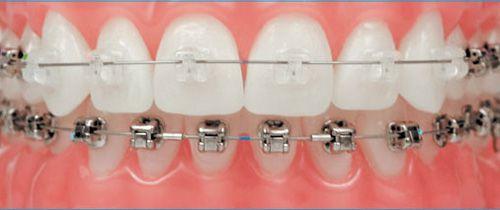 Niềng răng mắc cài sứ có tốt không?