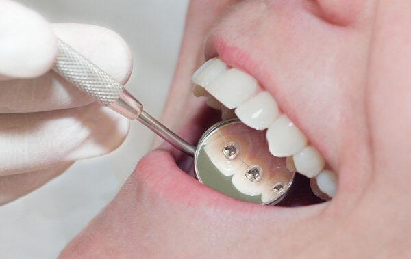Niềng răng mặt trong có đau không?