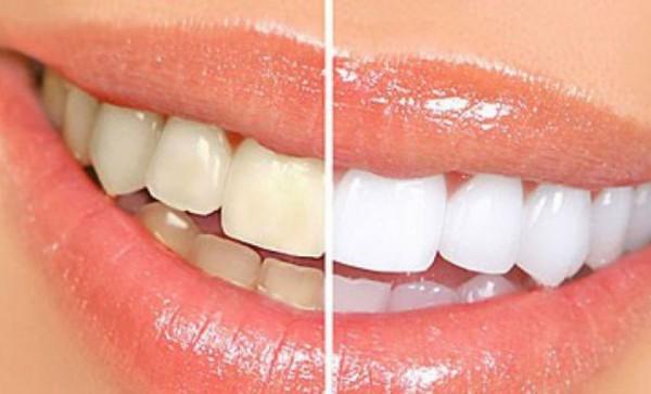 Phương pháp tẩy trắng răng hiệu quả và an toàn