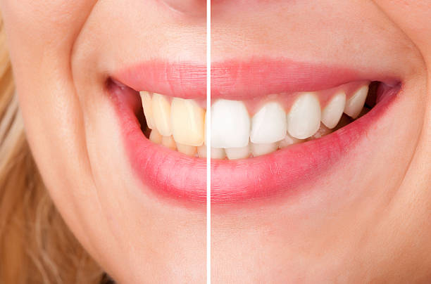 Tẩy trắng răng có đắt không?