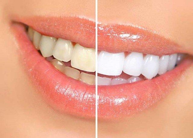 Tẩy trắng răng ở đâu tốt Tphcm?