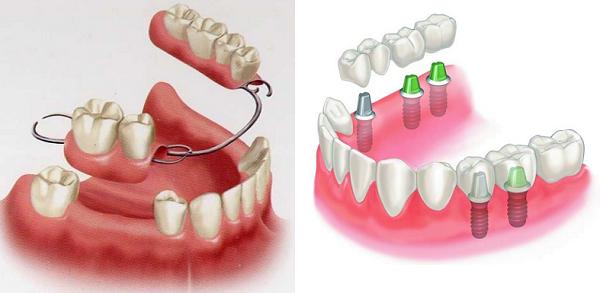 Trồng răng hàm thẩm mỹ và an toàn
