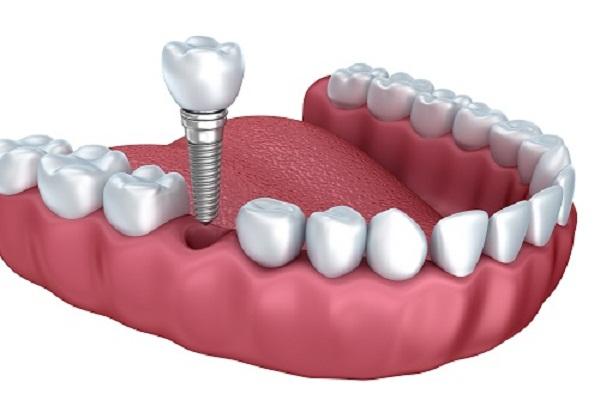 Trồng răng implant mất bao nhiêu?