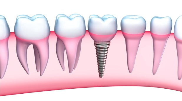 trong-rang-implant-mat-bao-lau-2