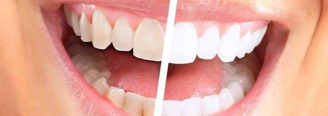 Bao lâu tẩy trắng răng 1 lần?