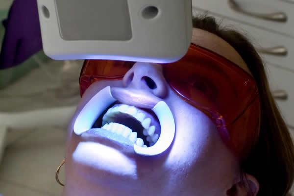 Cách tẩy trắng răng hiệu quả Chuyên gia tư vấn