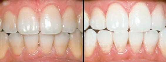 Có nên tẩy trắng răng nhiều lần không?