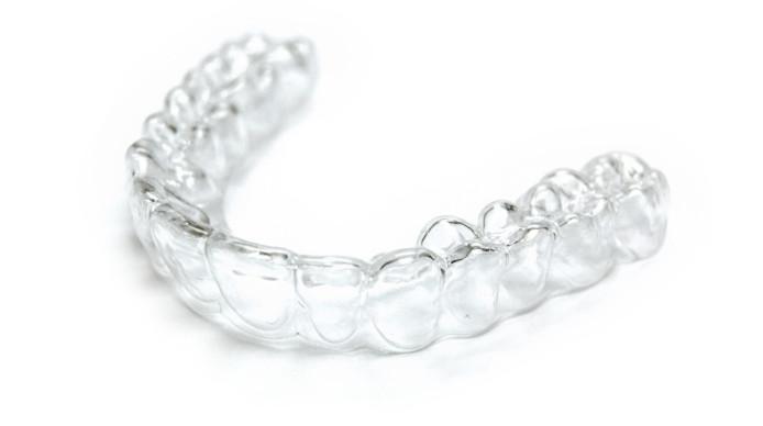 Lưu ý khi tẩy trắng răng bằng máng tại nhà