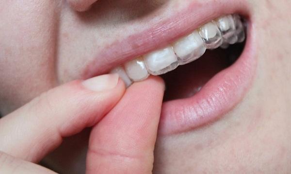 Niềng răng Invisalign có hiệu quả không?