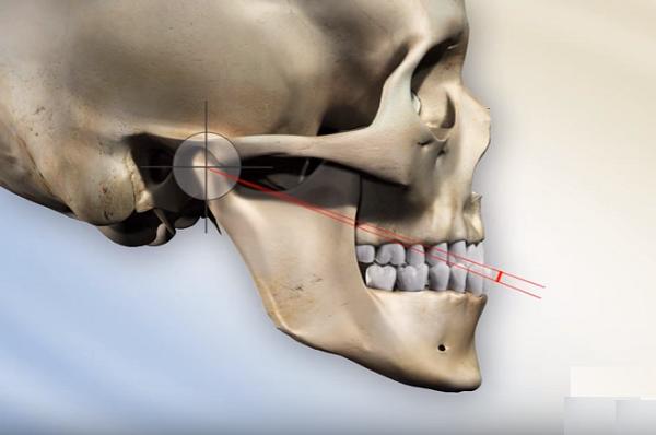 Phẫu thuật cắt xương hàm bao lâu thì lành?
