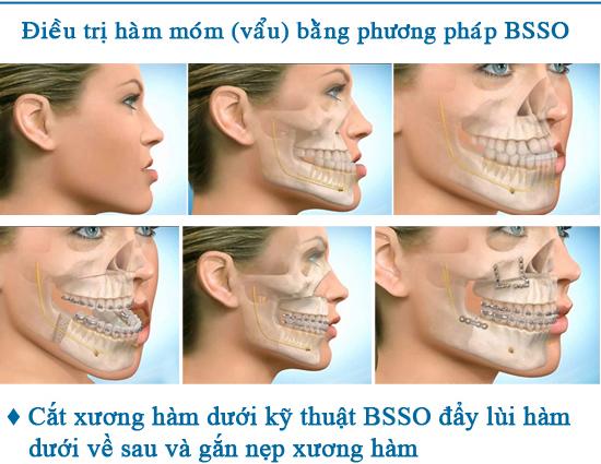 Phẫu thuật hàm móm bằng phương pháp BSSO