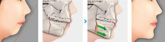 Phẫu thuật hàm hô móm có đau không?