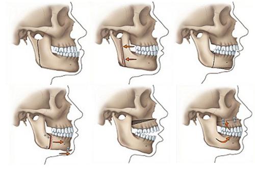 Phẫu thuật hàm móm an toàn và hiệu quả