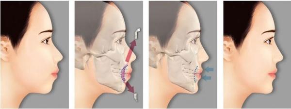 Phẫu thuật hàm móm có nguy hiểm không?