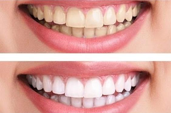 Tẩy trắng răng có nguy hiểm không?