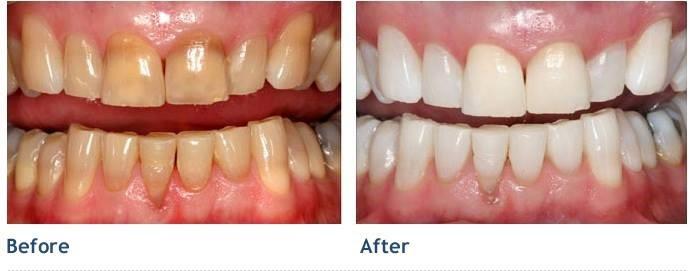 Tẩy trắng răng giá rẻ nên hay không?