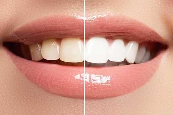 Tẩy trắng răng mất bao lâu thời gian?