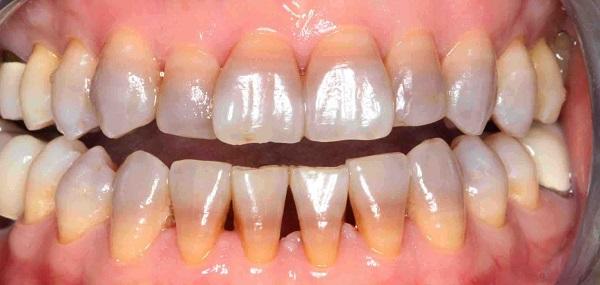 Tẩy trắng răng nhiễm Tectracyline có được không?