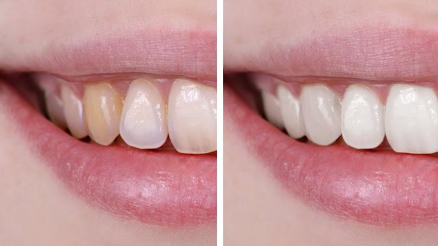 Tẩy trắng răng vĩnh viễn có được không?