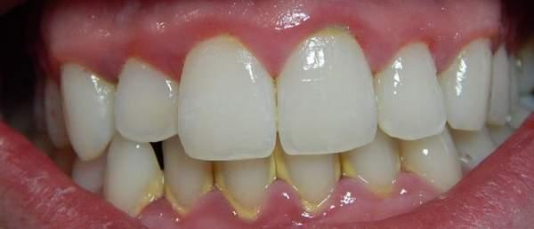 Cạo vôi răng thường xuyên có tốt không?